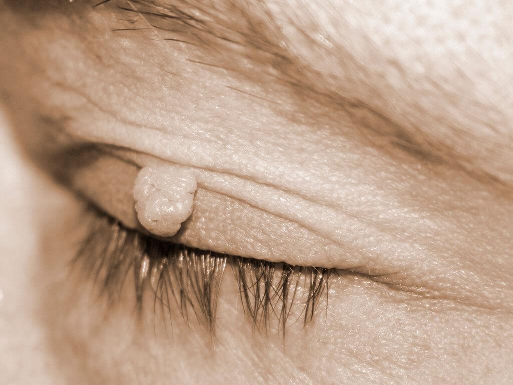 Fibroma Nedir