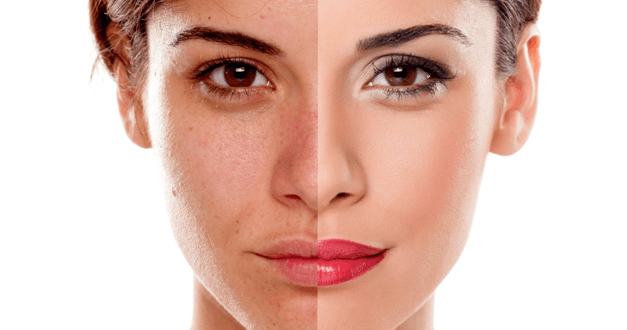 Chemical Peels And Your Skin